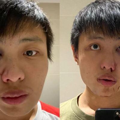 """""""No quiero tu coronavirus en mi país""""; joven asiático es brutalmente golpeado en Londres"""
