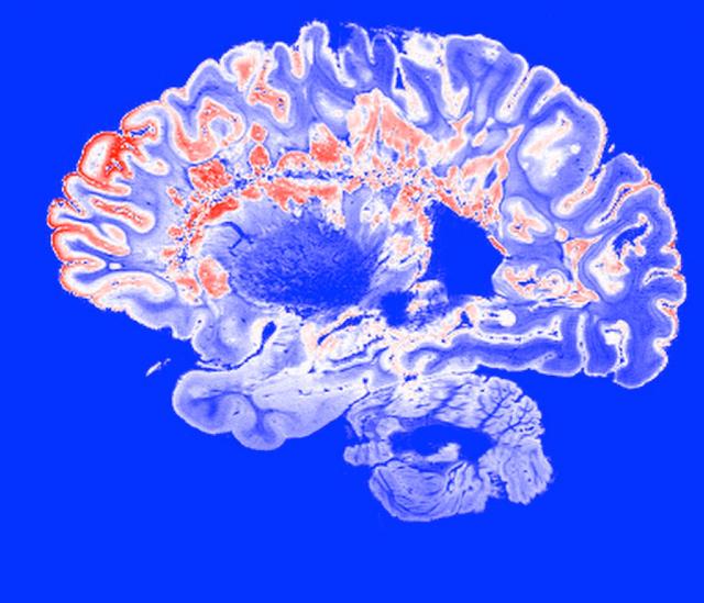 Infarto-Cerebral-Que-es-Muere-De-Que-Murio-Gerardo-Ruiz-Esparza-Infarto-Infartos-Enfermedades-Vasculares-Cerebrales-Enfermedad-Vascular-Cerebral-Cerebro, Ciudad de México, 2 de Abril 2020