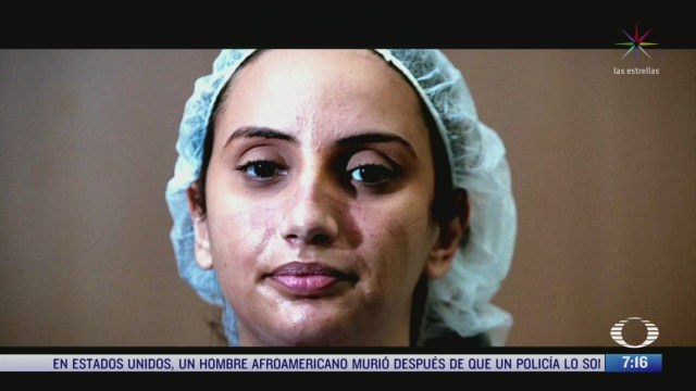 especialistas advierten sobre desgaste profesional entre el personal medico