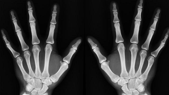 rayos-x-manos-fondo-negro-huesos