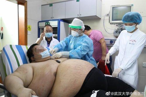 Hombre Sobrepeso Cama Hospital Personal Médico
