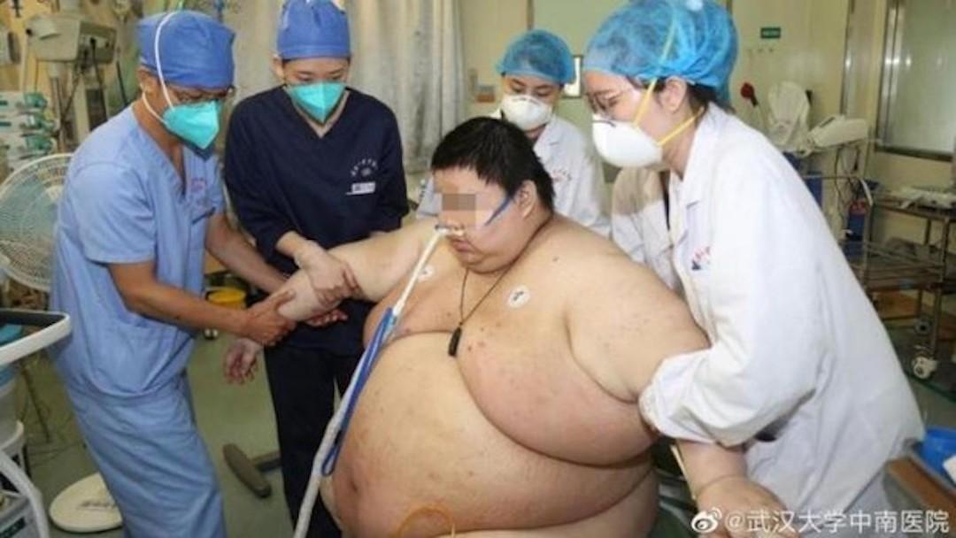 Hombre Sobrepeso Levantado Personal Médico Hospital Foto