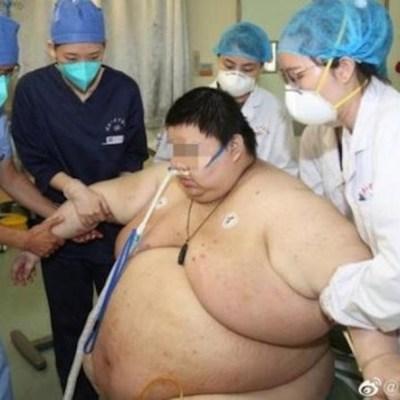 Hombre aumenta 100 kilos tras pasar 5 meses en casa por la cuarentena