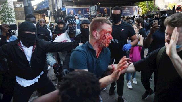 Fotografía que muestra a una persona herida tras los enfrentamientos durante las protestas contra el racismo en Reino Unido. (EFE)