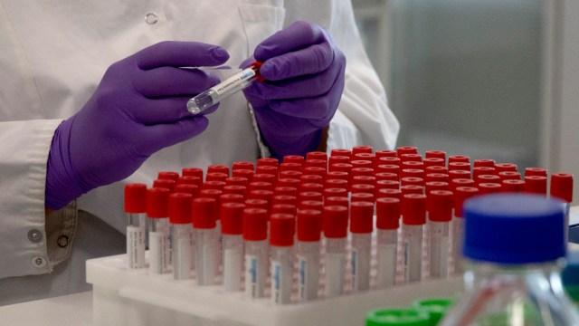 Vacuna contra COVID-19 de EEUU genera anticuerpos a niveles de los sobrevivientes