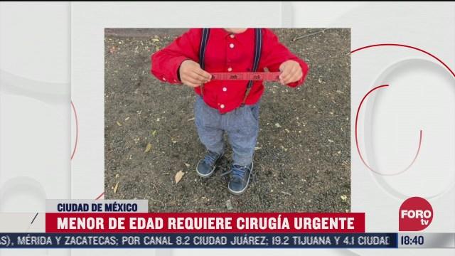 coronavirus ha retrasado cirugia de un nino de tres anos