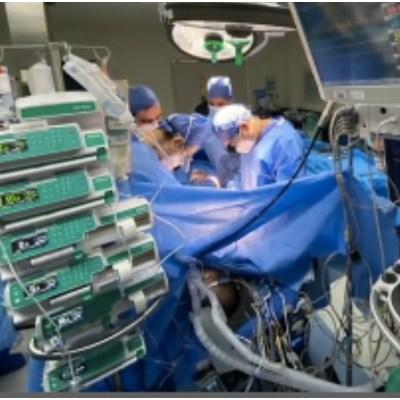 Trasplante Bipulmonar COVID