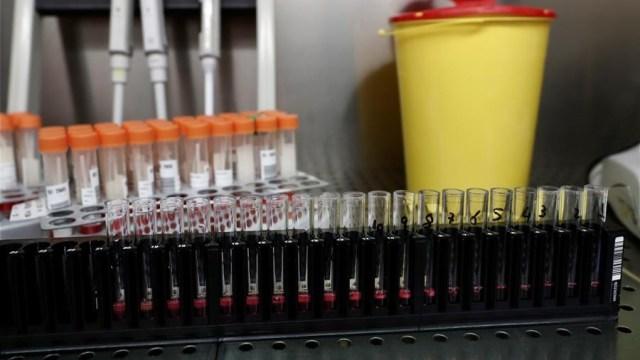 Segunda vacuna de Rusia contra COVID-19 tendría inmunidad de 6 meses