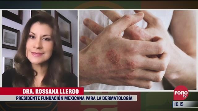 la dermatitis atopica