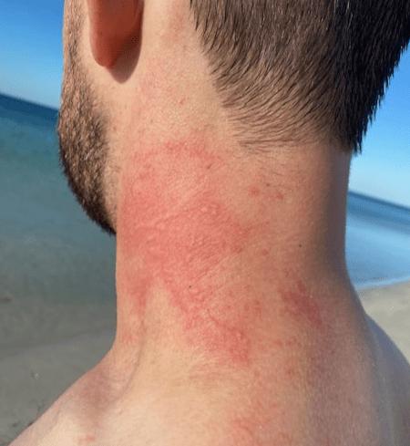 Pulpo ataca a bañista en playa de Australia