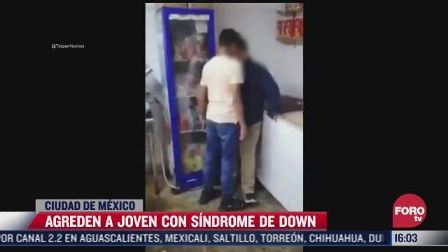 fiscalia de cdmx investiga agresion contra joven con sindrome de down