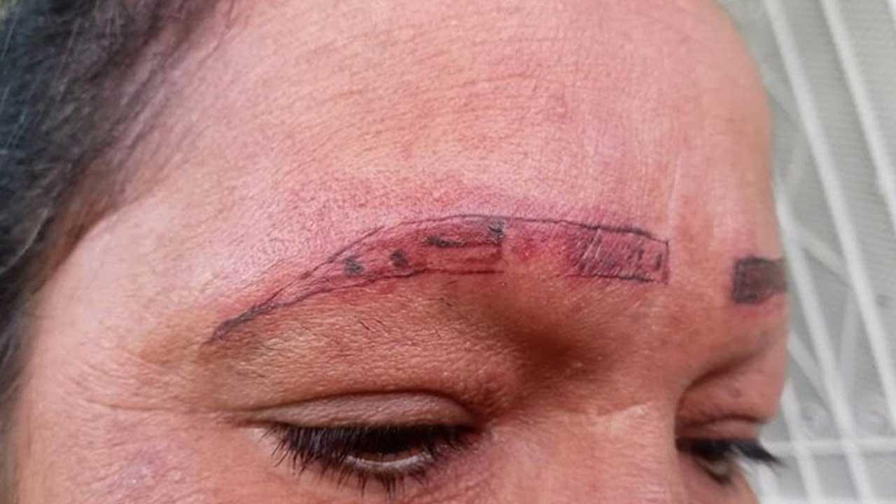 Mujer denuncia a tatuadores que arruinaron rostro a su madre