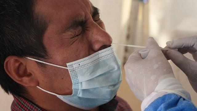 Hombre muestra dolor durante toma de muestra para la detección de COVID-19