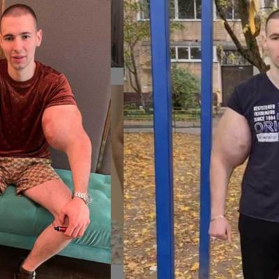 Video En plena pelea le explotan los bíceps a Hulk ruso