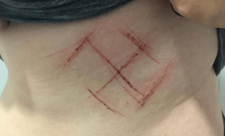 Photo of Estremecedor ataque a una adolescente por estar en contra de Bolsonaro