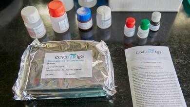Photo of El Gobierno nacional invertirá en ciencia aplicada al coronavirus