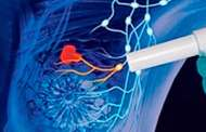 Bioinformática y radiología para detectar cáncer de mama