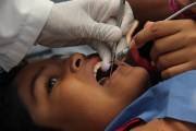 Primordial la salud bucal en chiapanecos: Seguro Popular