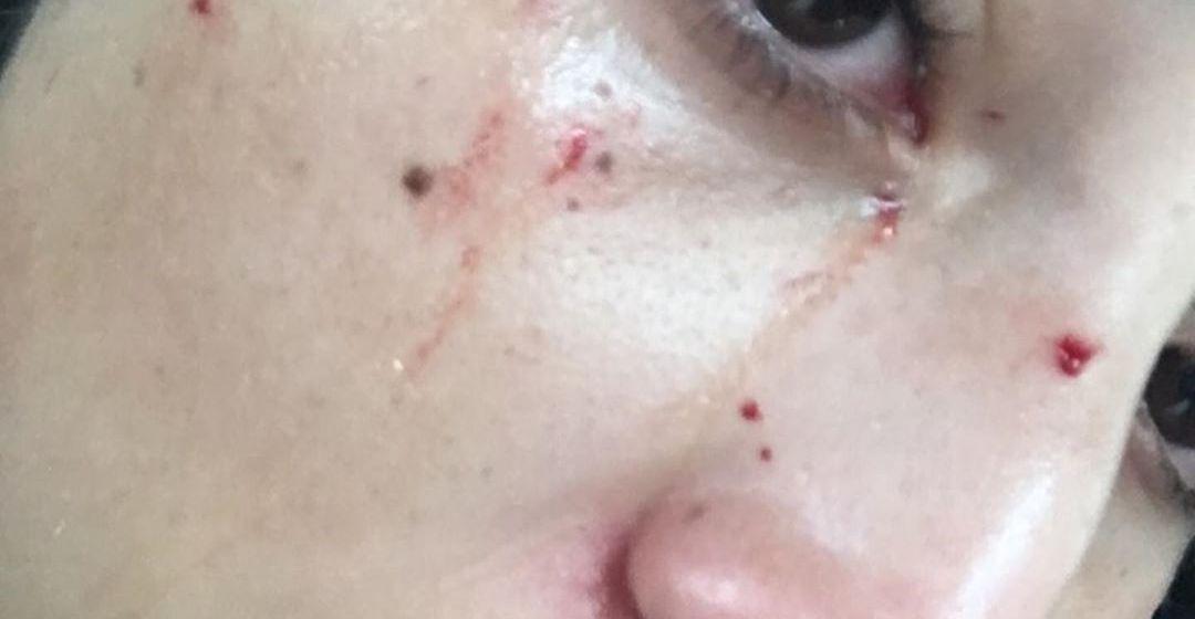 Con bate de béisbol, joven golpea a carro que le chocó, la bautizan #LadyPiñata (+video)