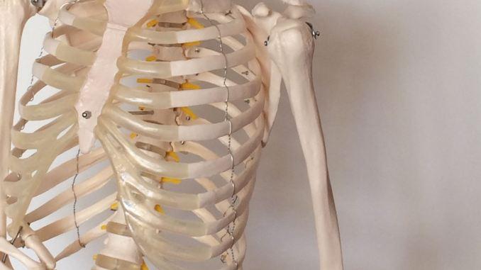 Trattamento del dolore per le ossa rotte. Ossa rotte (Grades 4 to 6)
