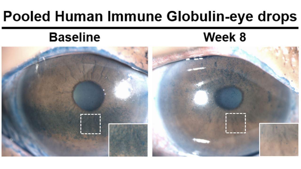 segni di infezione agli occhi umani