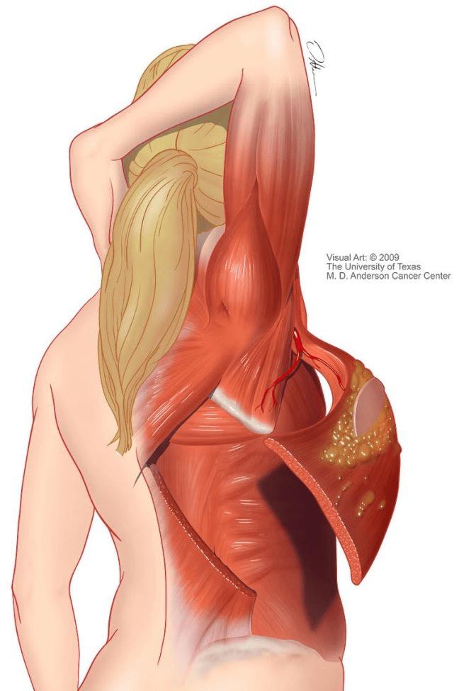 LD flap reconstruction illustration