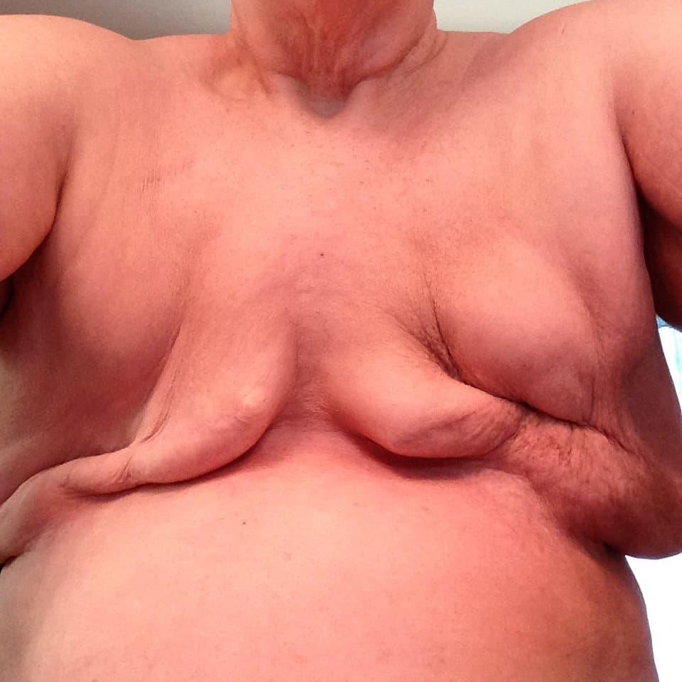 flat denial example mastectomy photo no contouring egregious