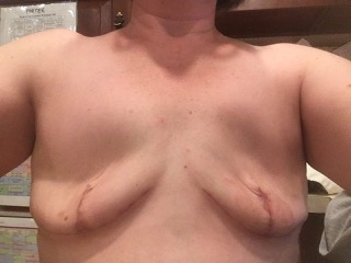 intentional flat denial mastectomy example skin sparing bait and switch