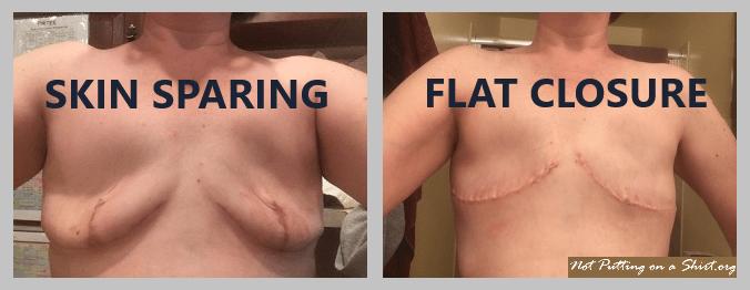 skin sparing mastectomy vs. mastectomy with aesthetic flat closureskin sparing mastectomy vs. mastectomy with aesthetic flat closure