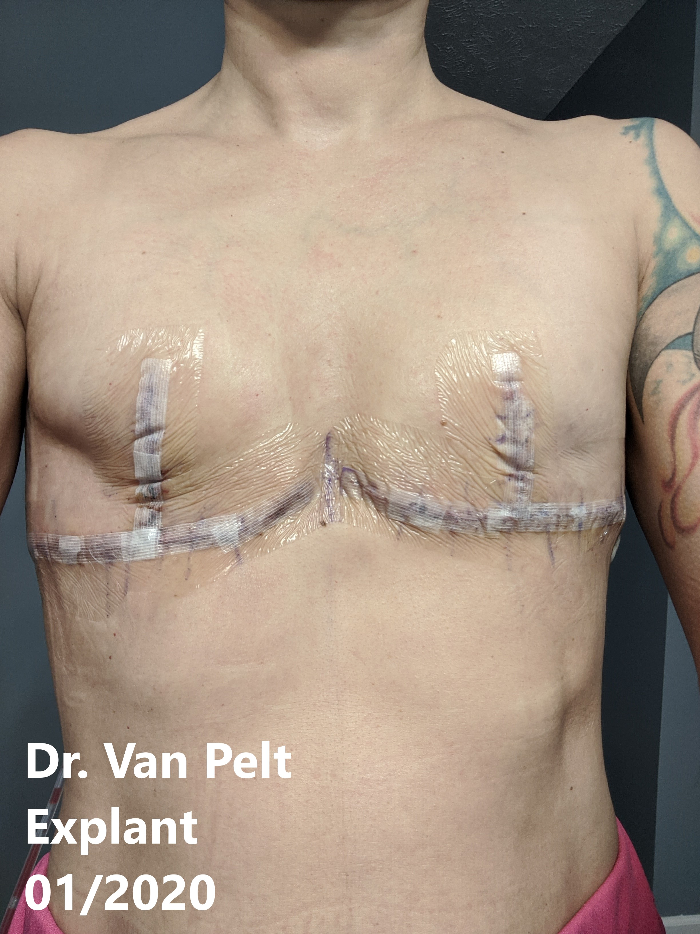 going flat photos aesthetic flat closure after explant breast implant removal mastectomy smooth flat chest