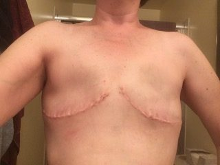 going flat photos aesthetic flat closure after mastectomy revision smooth flat chest