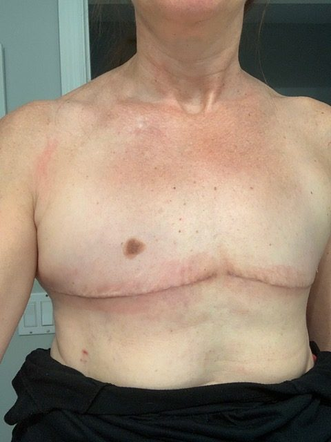 going flat photos aesthetic flat closure after mastectomy large breasts