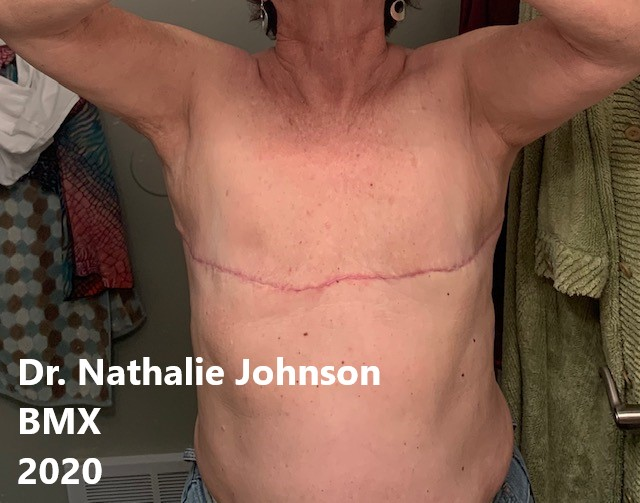 aesthetic flat closure after mastectomy example