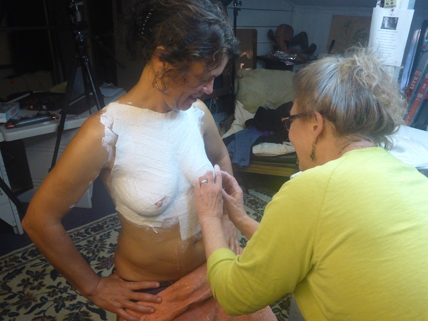 Woman making plaster cast of breasts before mastectomy Image Credit: Patricia Chambers