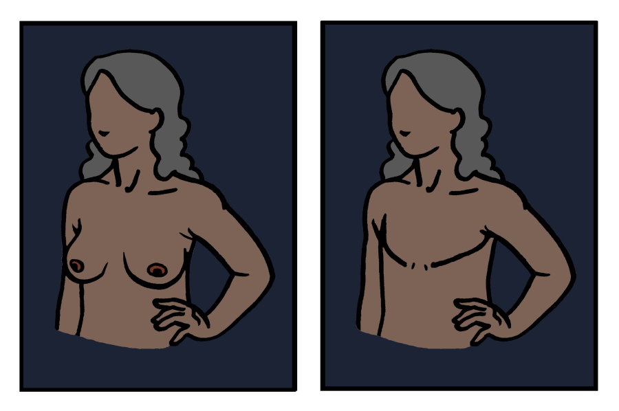 Cartoon woman before and after bilateral mastectomy with aesthetic flat closure