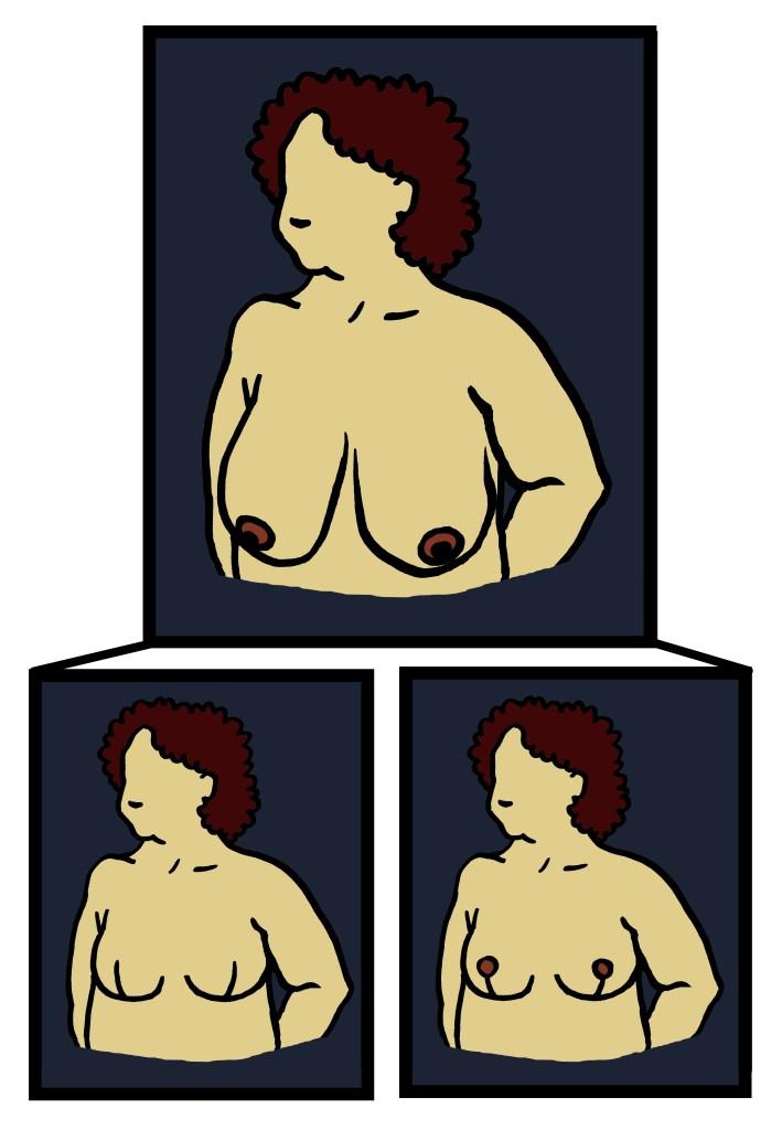 Goldilocks mastectomy breast reconstruction