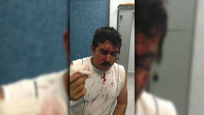 periodista_golpeado-2