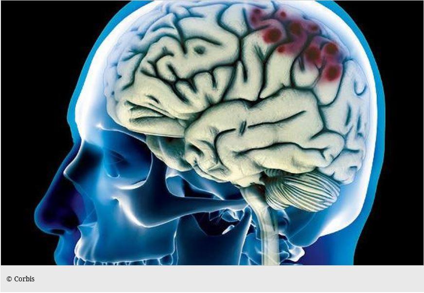SHT - Blutung Gehirn
