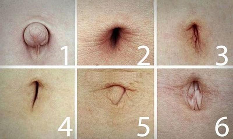 Вижте формата на пъпа си, за да разберете какви заболявания ви заплашват – много е точно!