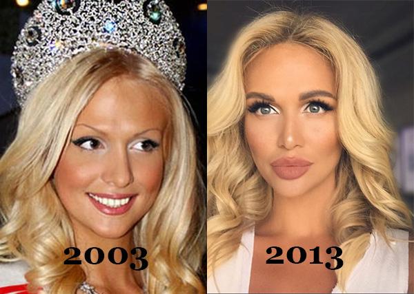 Виктория Лопырева до и после пластики: как выглядела ...