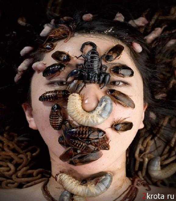 mi a pinworm betegség