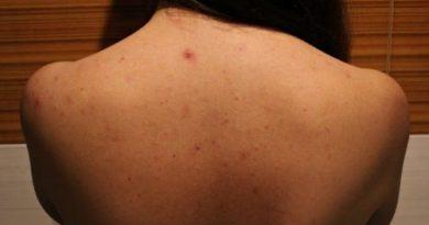 Как лечить прыщи на спине?