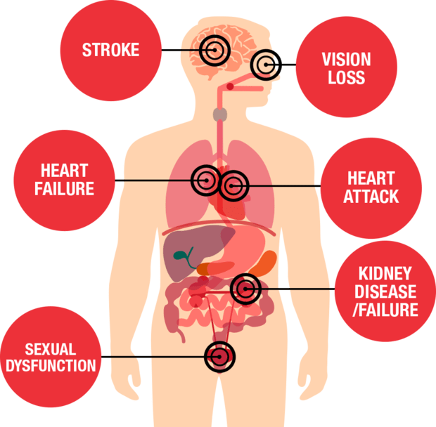 Effects of Hypertension on the body