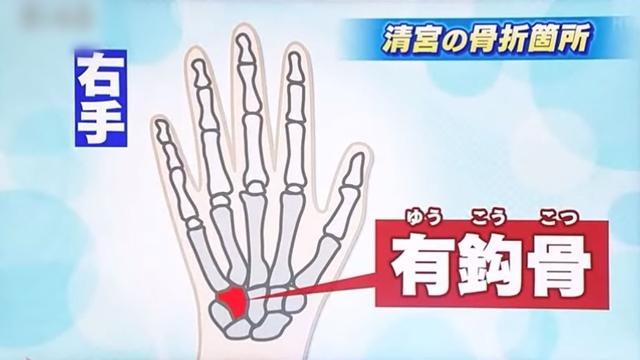 清宮幸太郎「王さんの868本抜く!三冠王!メジャー!」→2年目オープン戦で骨折