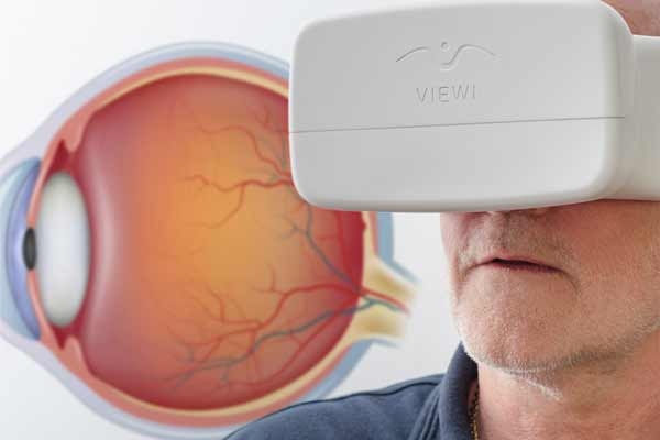 Innovative optical concept 'Viewi' offers simple, affordable, fast glaucoma screening test