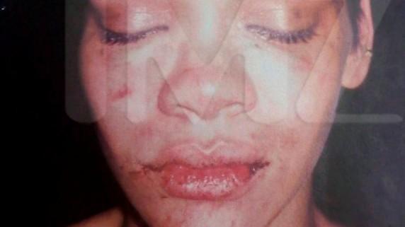 Rihanna (Foto Scanpix)