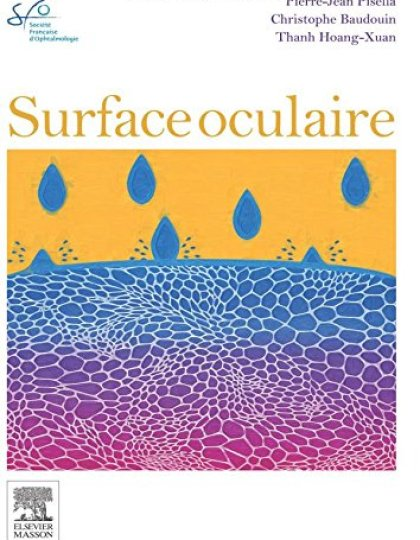 Surface oculaire