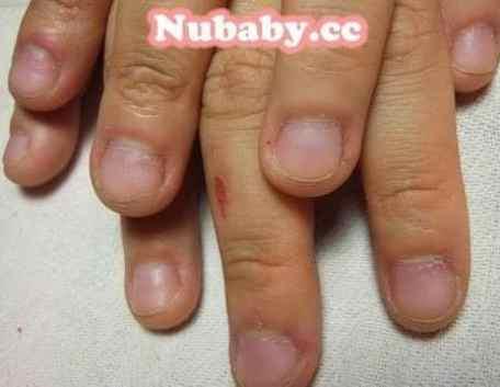 問題指甲矯正-摳指甲到流血的案例