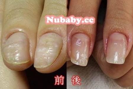 摳指甲-拯救發炎紅腫變形的大拇指