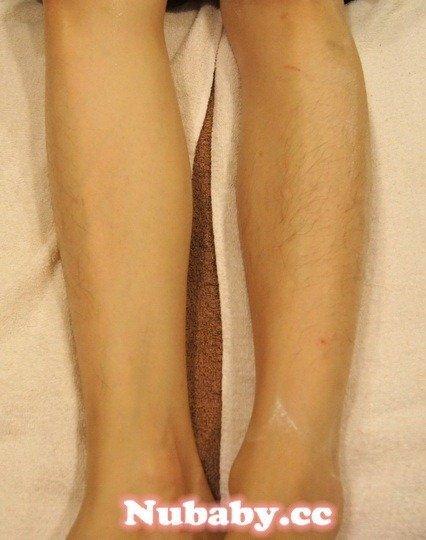 熱蠟除毛-佳佳的毛茸茸小腿毛